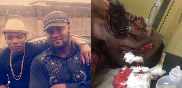 Wizkid's Bodyguard, Roy Emmanuel Attacked, Injured For Defending Him